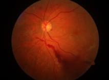 Laserscantomographie, Verlaufskontrolle Augenkrankheit, Fundusfotographie digital